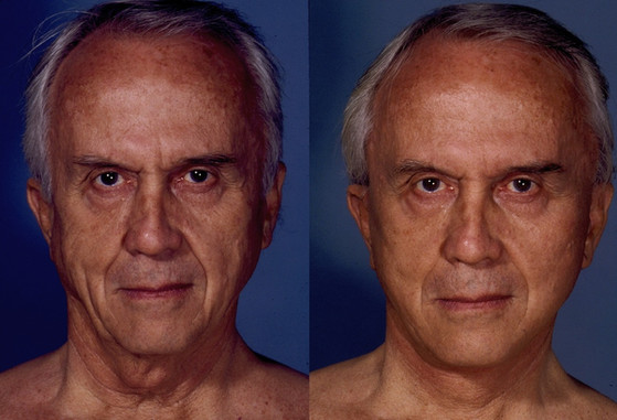 Facelift%2C%20%20%20(20090302111022276)%