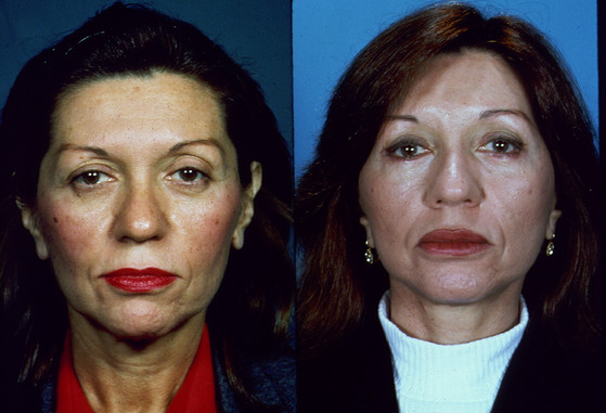 Before and After, Patient Photos  (20010