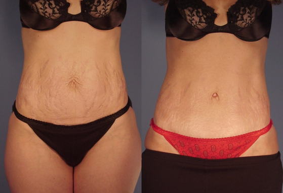tummy tuck 13.png