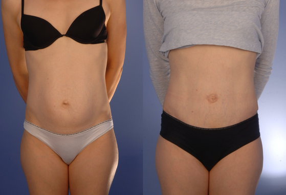 tummy tuck 6.png