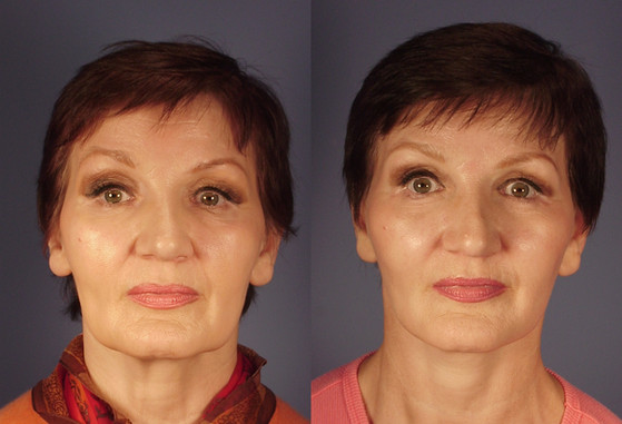Before and After, Facial Aesthetics  (20