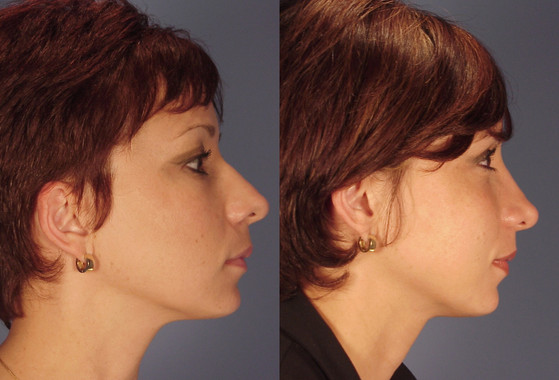 Rhinoplasty,   (20090225114057252) 20090