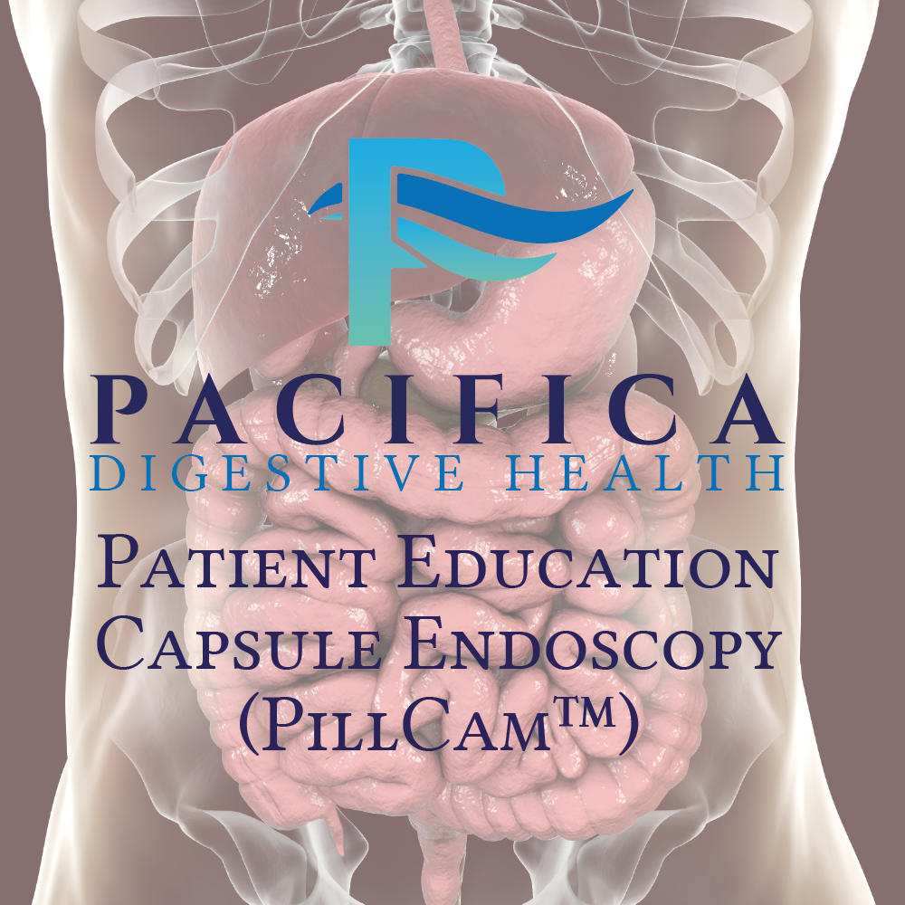 Pacifica Digestive Health Patient Education - Capsule Endoscopy (PillCam)