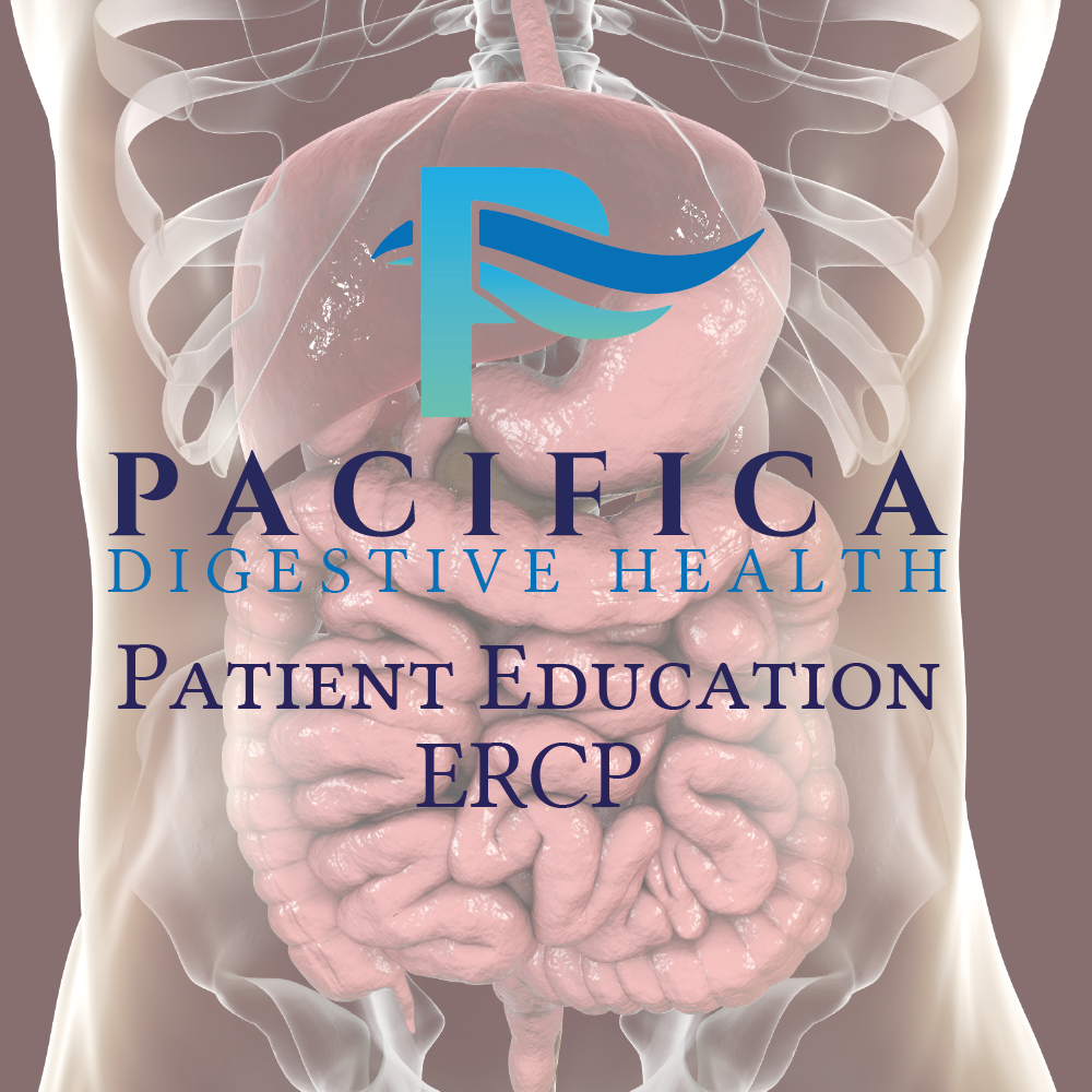 Pacifica Digestive Health Patient Education - Endoscopic Retrograde Cholangiopancreatography (ERCP)
