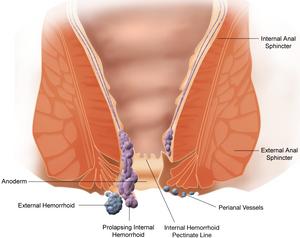 Types of Hemorrhoids