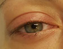 Oko před aplikací Lash Liftingu