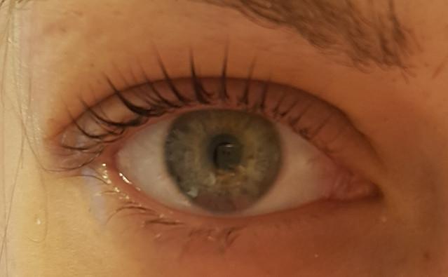Oko po aplikaci Lash Liftingu