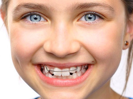 Ortodonzia e Ortodonzia invisibile.