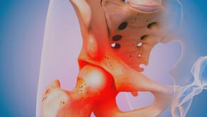 Fixing Hip Pain When You Squat