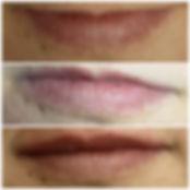 Dermal filler lips