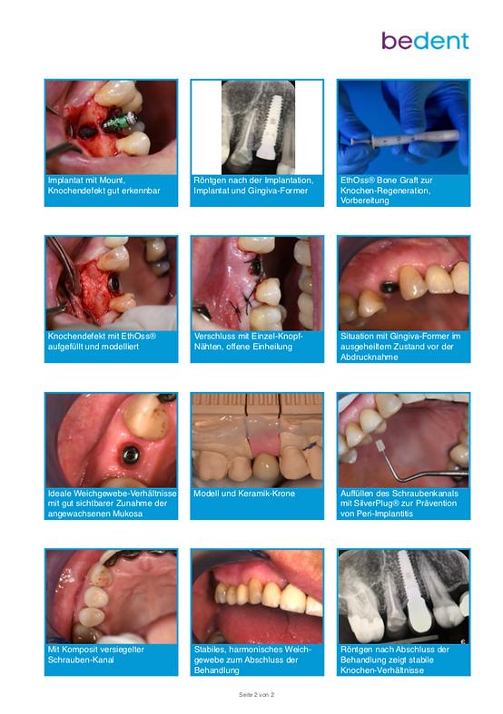 Sofort-Implantation und Knochen-Regenera