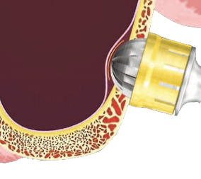externer Sinus-Lift, lateraler Lift