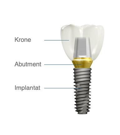 Implantat Aufbau.png