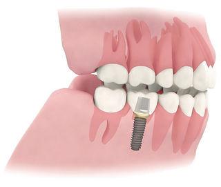 Implantat Prothetik festsitzend