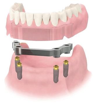 Implantat Prothetik abnehmbar, Zahnprothese, All on four, all on 4