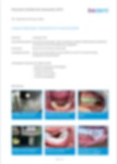 Klinischer Fall Implantation und Knochen