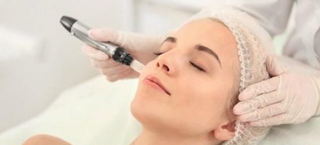 Revitalización facial con micropunciones
