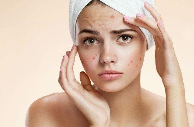 Controla y elimina el acné