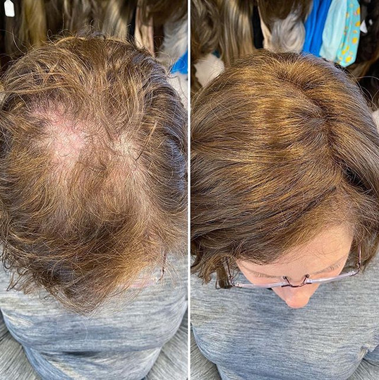 Hair loss and thinning can be caused by