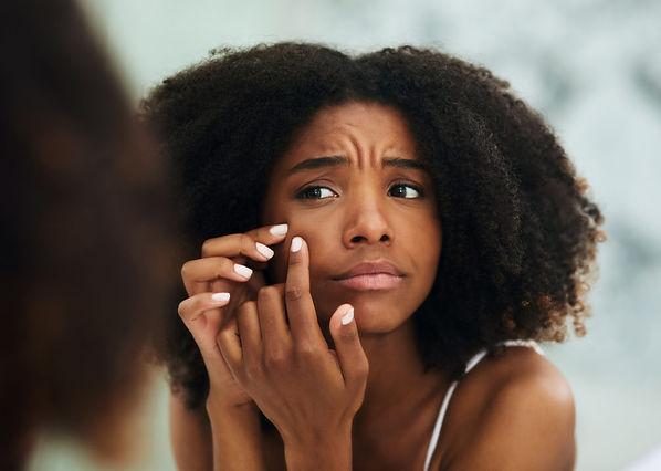 Black girl popping pimple.jpg