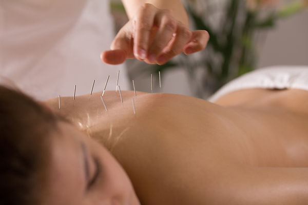 A person being treated with acupuncture