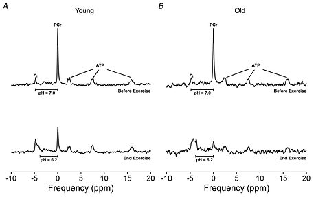 Representative 31P spectra from before and at the end of the fatiguing dynamic excercise