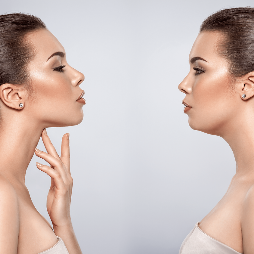 Lipopapada Enzimática ou Lipoaspiração (mecânica) papada e Lipo Escultura Facial