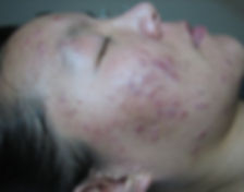Acne Before photo