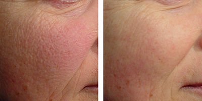 Laser Rejuvenation Skin