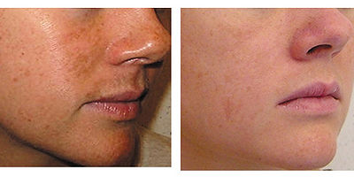 Chemical Peel Montreal