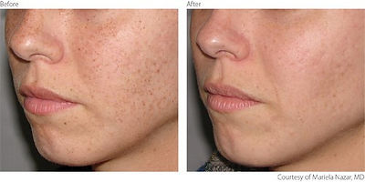 Befor After Pigmentation