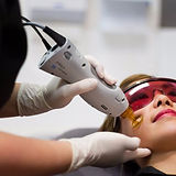 laser facial skin rejuvenation