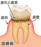 2歯周炎.png