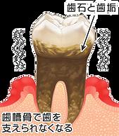 5歯周病.png