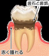 3歯周病.png