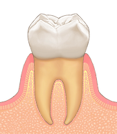 1歯 正常.png