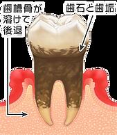 4歯周病.png