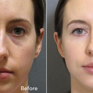 Dermal+Fillers+Before+&+After.003.jpeg