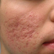 acne-scarring5-DavinLim.jpg