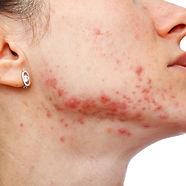 Active-acne.jpg