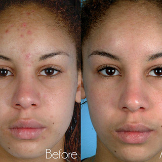 Microdermabrasion-before-and-after.jpg