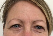 frown-lines-botox-before-LC.jpg
