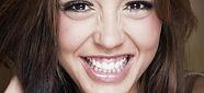 gummy-smile-min-925x425.jpg