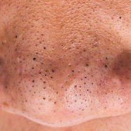 remove-nose-blackheads-1505925192.jpg