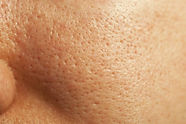 close-up-of-large-pores-on-the-face-and-