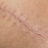Surgical Scars.png