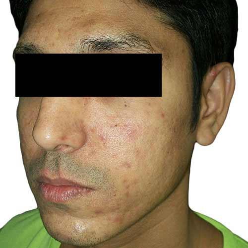 acne_scar_reduction_3_before.jpg