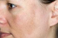 sun-damaged-skin.jpg