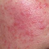 acne-rosacea-homeopathy-treatment-500x50