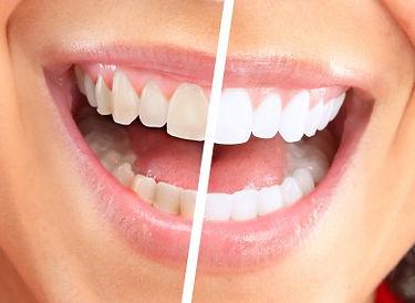 tooth-whitening-390x285.jpg